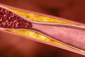 Xơ vữa mạch vành - Nguyên nhân chính của thiếu máu cơ tim thầm lặng